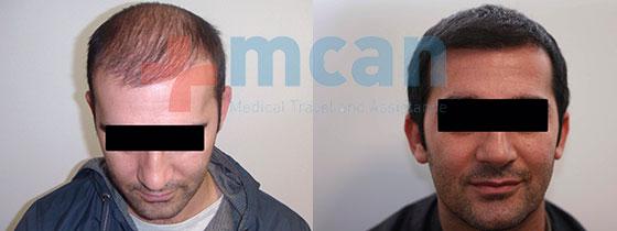 hårtransplantation tyrkiet