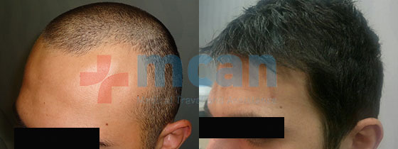 hairtransplantation_1