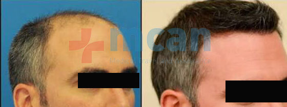 hairtransplantation_2