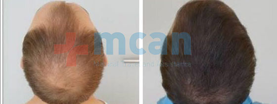 hairtransplantation_3